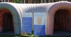 Inflatable Colon